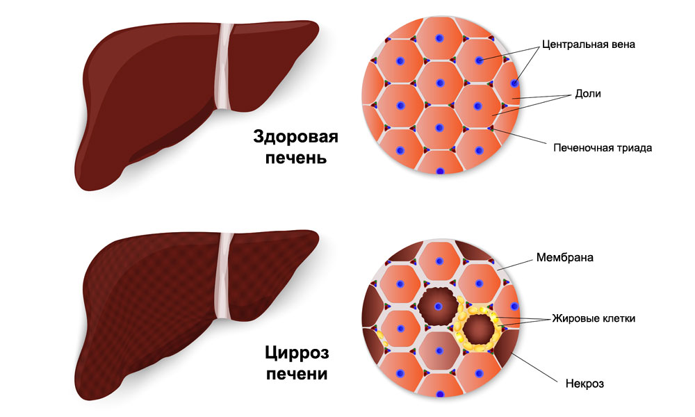 effects of liveraide on the liver Liveraide drug & pharmaceuticals active ingredients names and forms, pharmaceutical companies liveraide indications and usages, prices.